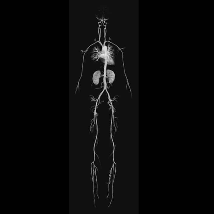 Vascular MRA