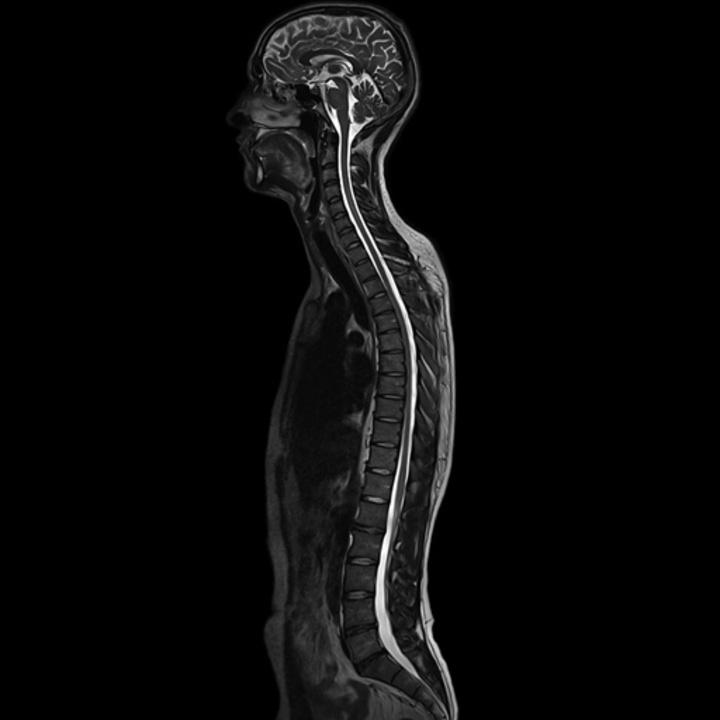 Spine MRI