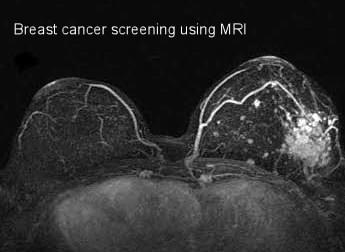 Breast Cancer Screening Using MRI