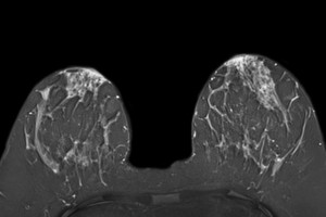 Breast Cancer Screening Using MRI